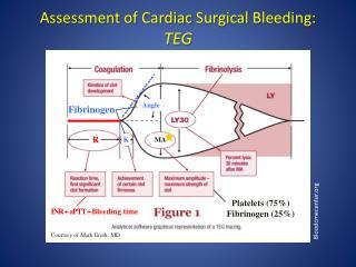 Assessment of Cardiac  Surgical  Bleeding: TEG