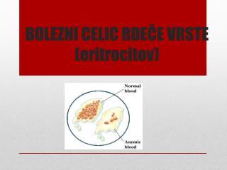 BOLEZNI CELIC RDEČE VRSTE (eritrocitov)