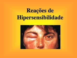 Rea��es de Hipersensibilidade