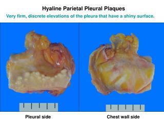 Pleural side