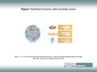 Figure 1 Epithelial hierarchy within prostate cancer
