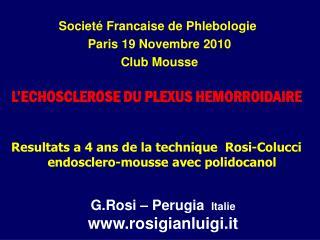 Resultats a 4 ans de la technique  Rosi-Colucci    endosclero-mousse avec polidocanol