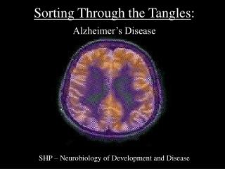 Sorting Through the Tangles :  Alzheimer's Disease