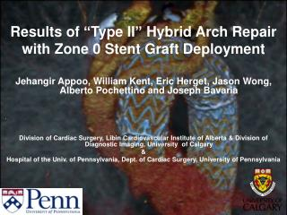 "Results of  "" Type II ""  Hybrid Arch Repair with Zone 0 Stent Graft Deployment"