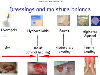 Dressings and moisture balance