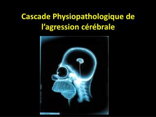 Cascade Physiopathologique de l agression c r brale