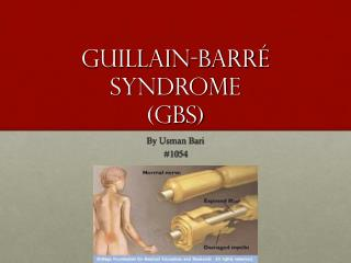 Guillain-Barr� syndrome (GBS)