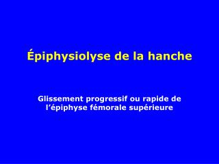 Épiphysiolyse de la hanche