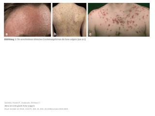 Gollnick , Harald P.;  Zouboulis , Christos C. Akne ist nicht gleich  Acne vulgaris
