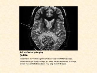 Adrenoleukodystrophy (X-ALD)