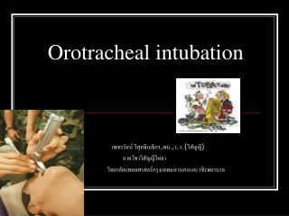 Orotracheal intubation