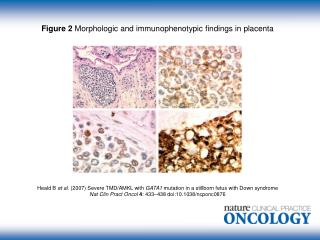 Figure 2  Morphologic and immunophenotypic findings in placenta