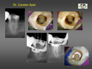 Dr. Carsten Apel