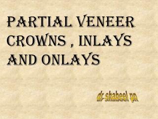 Partial Veneer Crowns , Inlays and Onlays