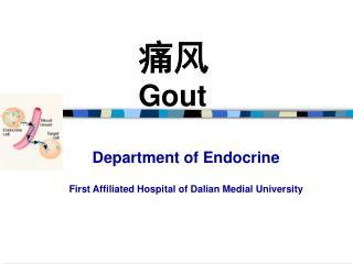 痛风 Gout