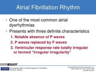 Atrial Fibrillation Rhythm