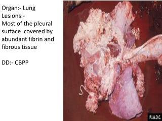 Organ:-  Chest cavity Lesions:-