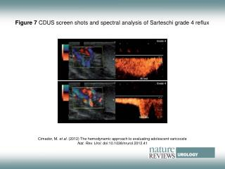 Figure 7 CDUS screen shots and spectral analysis of Sarteschi grade 4 reflux