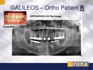 GALILEOS – Ortho Patient  R