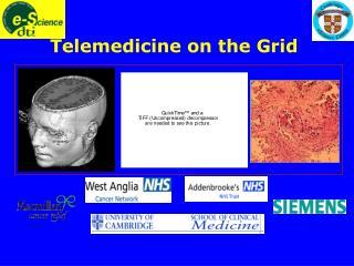 Telemedicine on the Grid