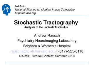 Stochastic Tractography Analysis of the uncinate fasciculus