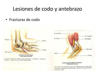 Lesiones de codo y antebrazo
