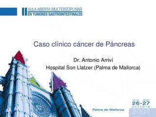 Caso clínico cáncer de Páncreas