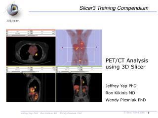 PET/CT Analysis using 3D Slicer