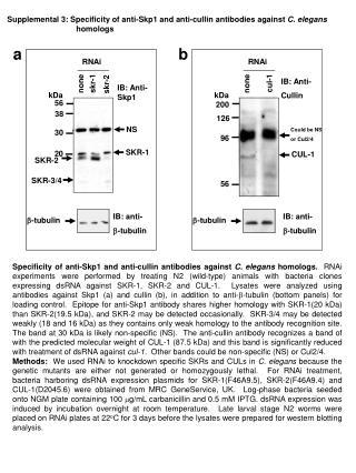 IB: anti-  -tubulin
