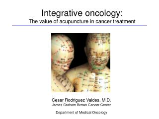 Integrative oncology:  The value of acupuncture in cancer treatment