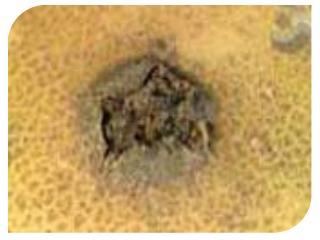 Təsnifatda yeri : Aktinomisetlər və ya şüalı göbələklər ,   Streptomyces  cinsi Bioloji qrupu :