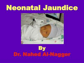 Neonatal Jaundice      By  Dr. Nahed Al-Nagger