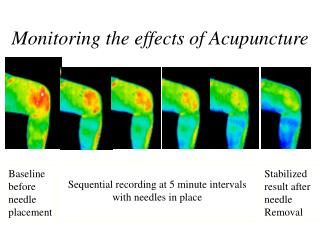 Monitoring the effects of Acupuncture