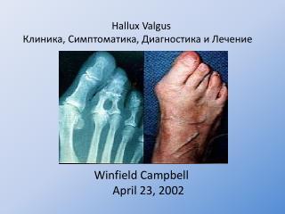 Hallux Valgus Клиника ,  Симптоматика ,  Диагностика и Лечение Winfield Campbell April 23, 2002