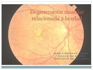 Degeneración macular relacionada a la edad