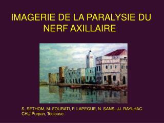 IMAGERIE DE LA PARALYSIE DU NERF AXILLAIRE