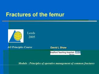 Fractures of the femur