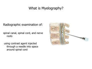 What is Myelography?