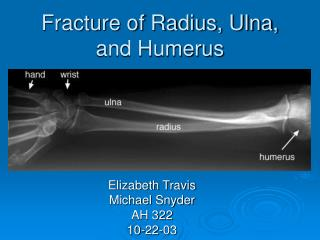 Fracture of Radius, Ulna, and Humerus