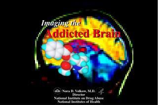 Imaging the  Addicted Brain