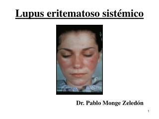 Lupus eritematoso sist émico