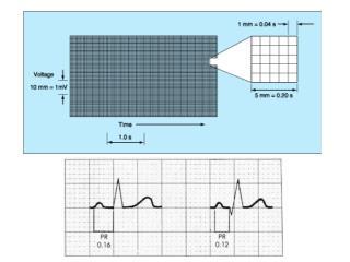 Cuadro pequeño  =  0,04 s/mm Cuadro grande  =  0,2 s/5mm FC :  1500 / RR, nl 60-100 lpm
