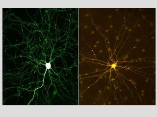 Neuron Structure and Function Relationship between Stimuli   Input Nervous System Organization