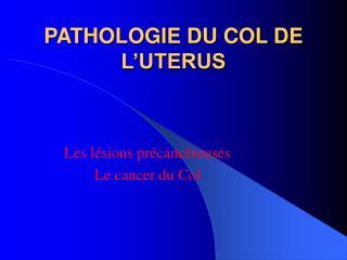 PATHOLOGIE DU COL DE L'UTERUS