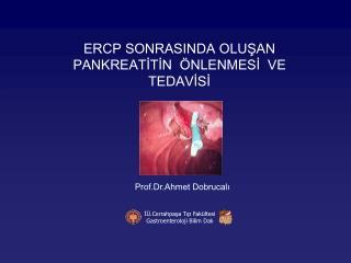 ERCP SONRASINDA OLUŞAN PANKREATİTİN  ÖNLENMESİ  VE TEDAVİSİ