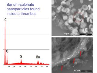 Barium-sulphate nanoparticles found inside a thrombus