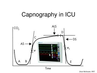 Capnography in ICU