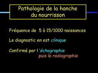 Fr�quence de  5 � 15/1000 naissances Le diagnostic en est  clinique Confirm� par l�� �chographie
