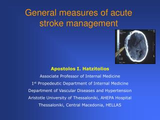 General measures of acute stroke management