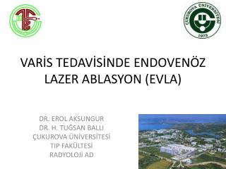 VARİS TEDAVİSİNDE ENDOVENÖZ LAZER ABLASYON (EVLA)